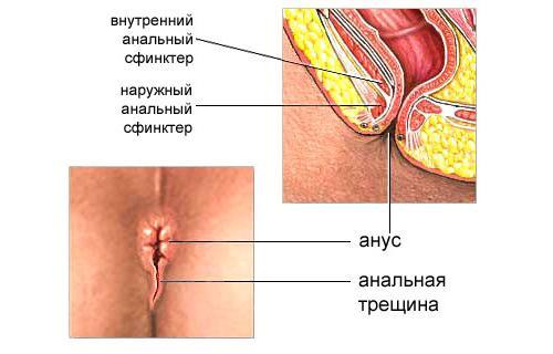 Пример расположения анальной трещины