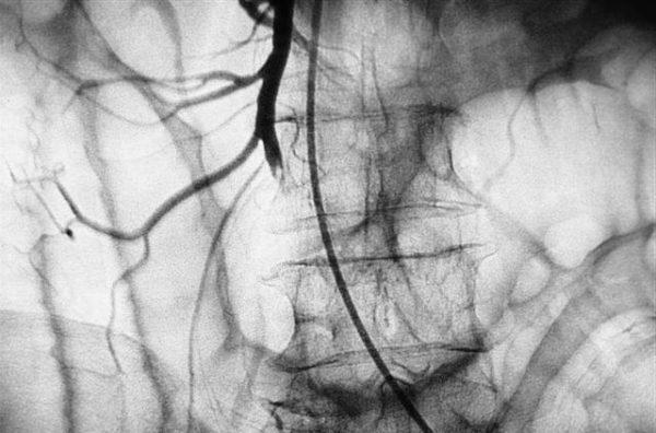 Ангиография - самый эффективный метод диагностики изменений в сосудах при инфаркте кишечника
