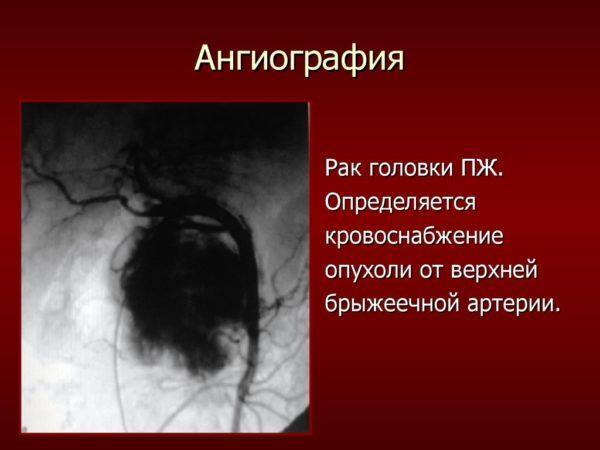 Ангиография. Рак головки ПЖ