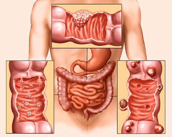 Атрофический колит кишечника