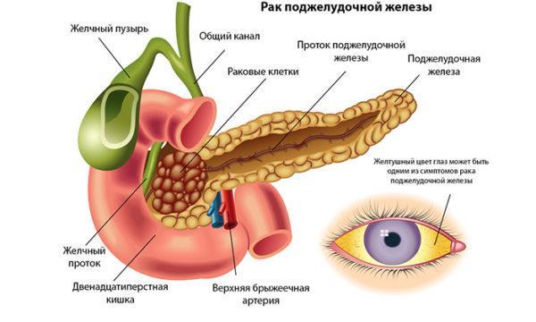 Без лечения калькулезного панкреатита достаточно высок риск появления злокачественных опухолей железы