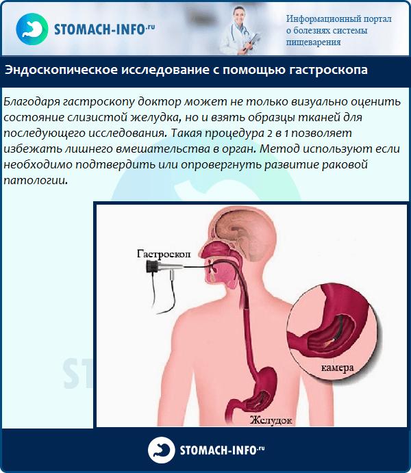 Эндоскопия - один из важнейших методов диагностики