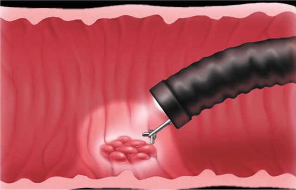 Биопсия при фиброгастроскопии