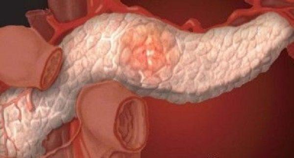 Болевой синдром при стеатозе проявляет себя не сразу