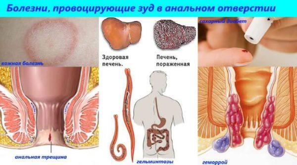 Болезни, провоцирующие зуд в анальном отверстии