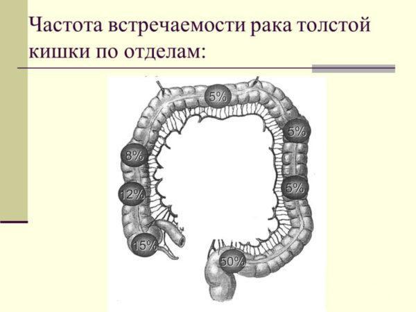 Частота встречаемости рака толстой кишки по отделам