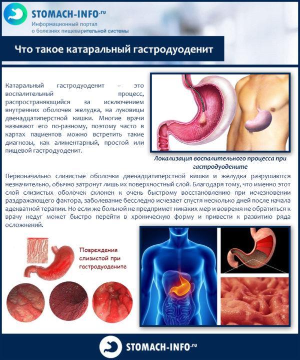 Что такое катаральный гастродуоденит