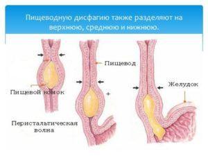 Дисфагия