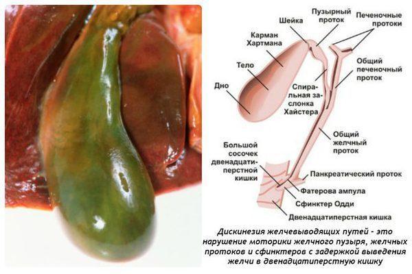 Дискинезия желчевыводящих протоков