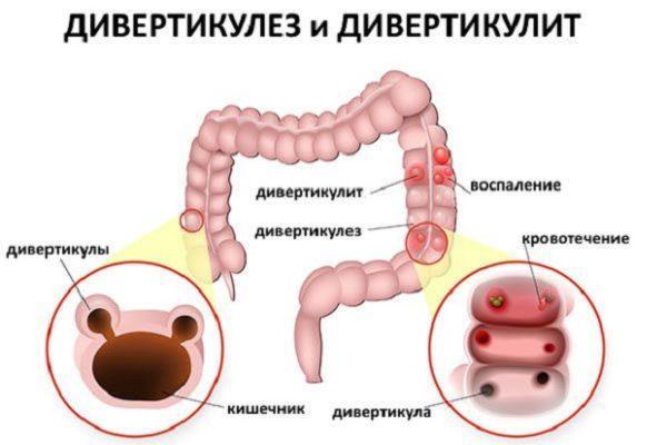 Дивертикулез сигмовидной кишки и дивертикулит