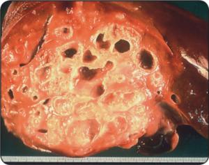 Эхинококки альвеолярные