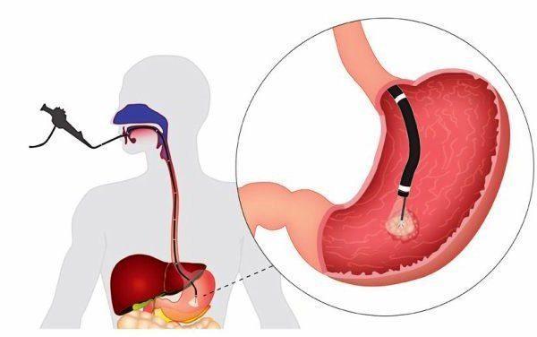Фиброгастроскопия желудка