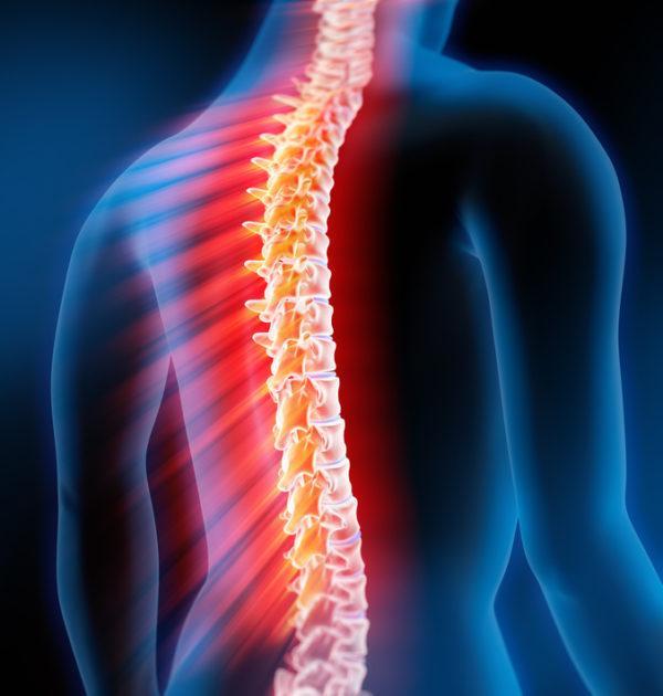 Различные патологии позвоночника могут вызывать боль, иррадиирующую в область живота