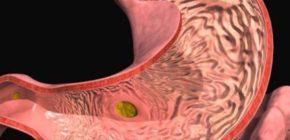 Гастродуоденит катаральный