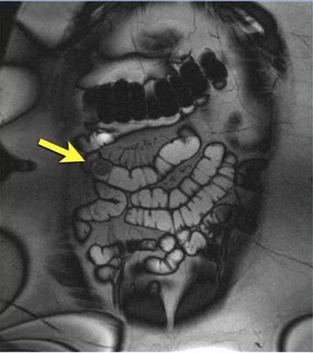 Раковая опухоль в кишечнике, выявленная с помощью МРТ