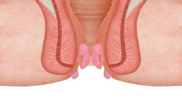 Геморрой можно отличить от трещин обычно из-за наличия провисающих узлов из заднего прохода