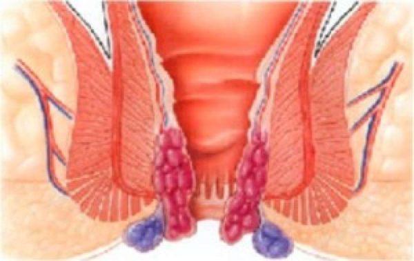 Геморрой осложненный тромбозом