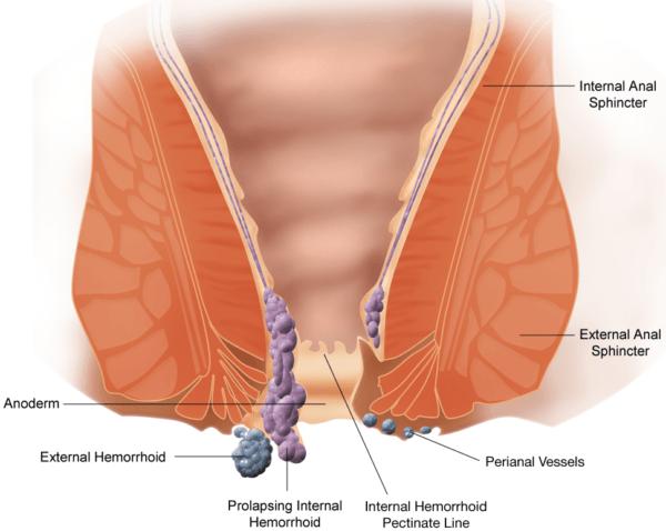 Геморрой - заболевание, связанное с тромбозом, воспалением, патологическим расширением и извитостью геморроидальных вен, образующих узлы вокруг прямой кишки