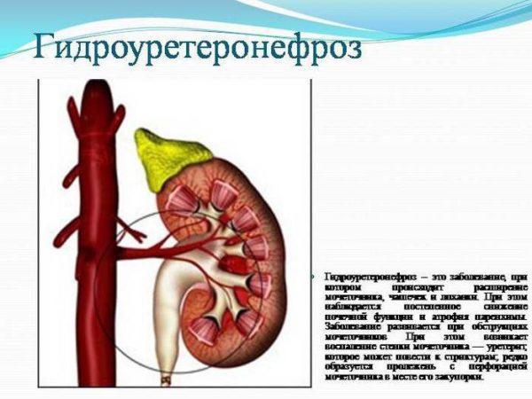 Гидроуретеронефроз – это заболевание, которое возникает по причине нарушения мочеотведения
