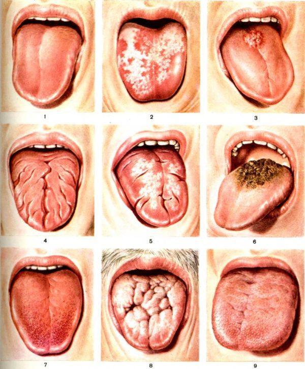 Форма и размер языка - важные показатели здоровья