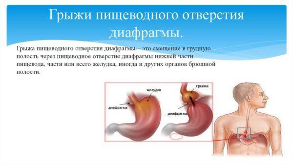 Грыжа пищеводного отверстия диафрагмы (ГПОД)