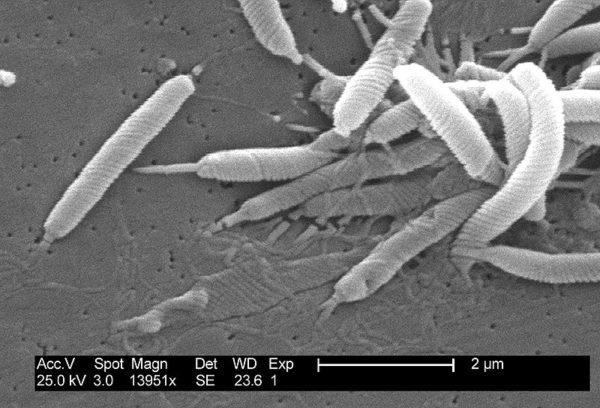 H. pylori под микроскопом