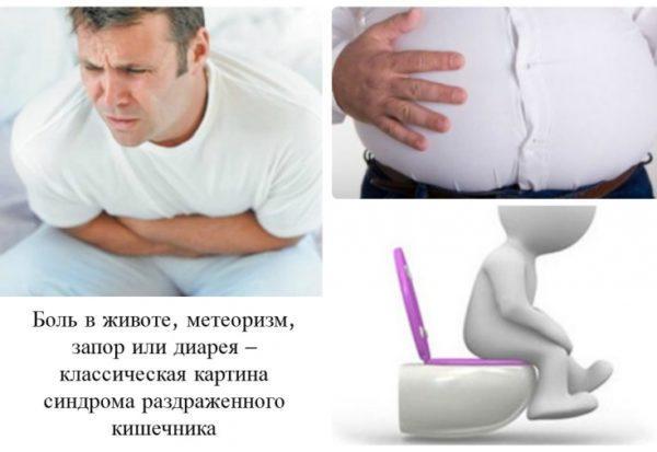 Характерные симптомы синдрома раздраженного кишечника