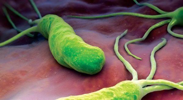 Гастрит чаще возникает из-за попадания в организм специфической бактерии