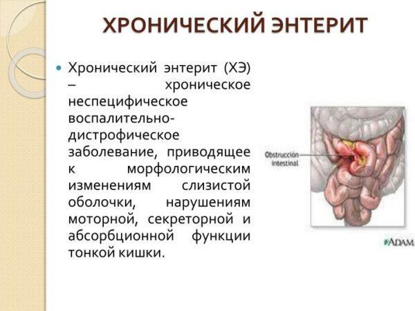 Хронический энтерит