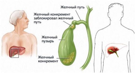 Хронический калькулёзный холецистит симптомы и лечение