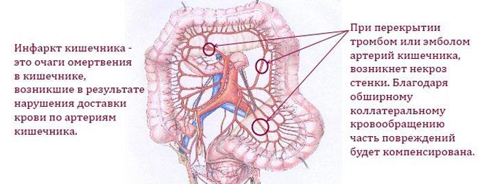 Инфаркт кишечника: что это такое? Симптомы и причины