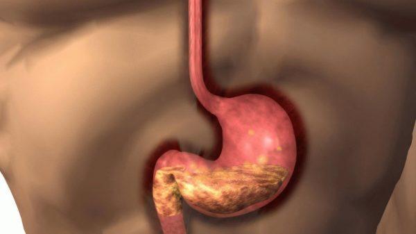 Как правило, болезнь развивается вследствие неправильного питания