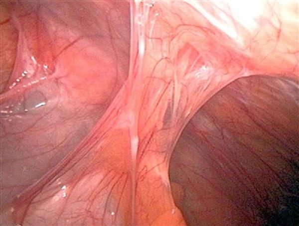 Спаечный процесс в кишечнике симптомы и лечение