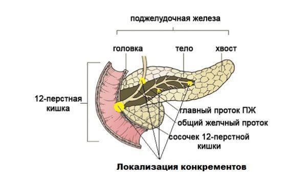 Калькулезный панкреатит характеризуется возникновением конкрементов, которые могут располагаться в различных местах протоков