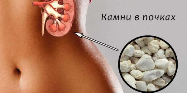 Мочекаменная болезнь - противопоказание для употребления тыквенных семечек