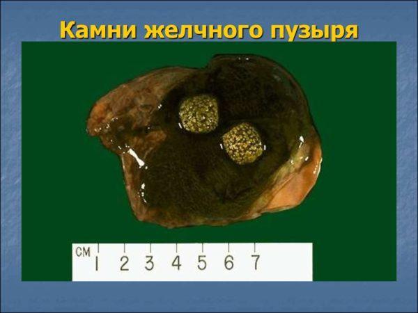 Камни желчного пузыря