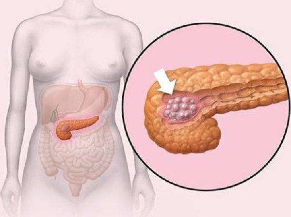 Клетки тканей поджелудочной заменяются на жировые структуры