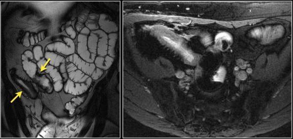 Мультифокальное поражение при болезни Крона (отмечены стрелками)