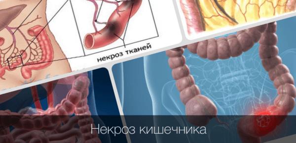 На стадии инфаркта кишечника в нём происходит некроз