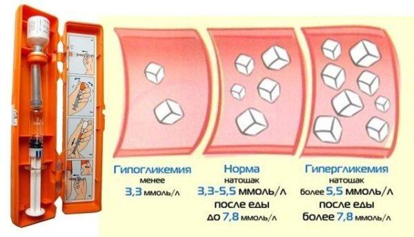Норма, гипо- и гипергликемия