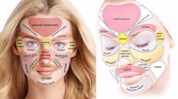 О каких нарушениях свидетельствует локализация прыщей на лице
