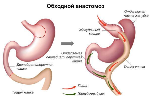 Обходной анастамоз