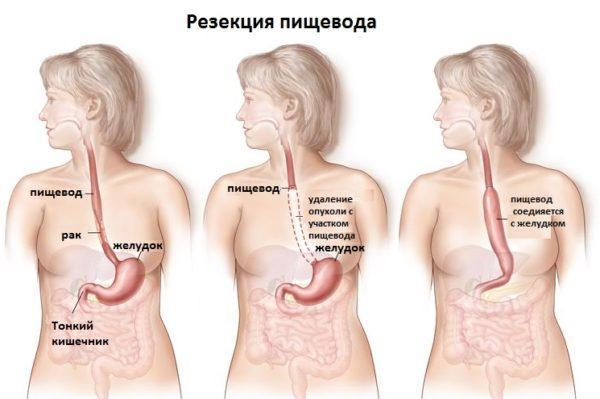 Операция на пищеводе при его раке