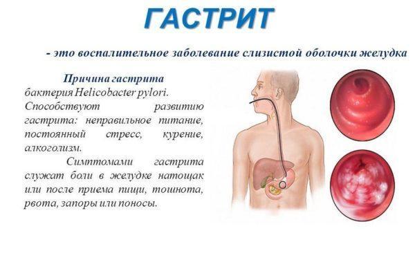 Гастрит - одна из причин ноющих болей слева