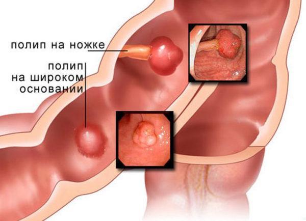 Виды полипов кишечника