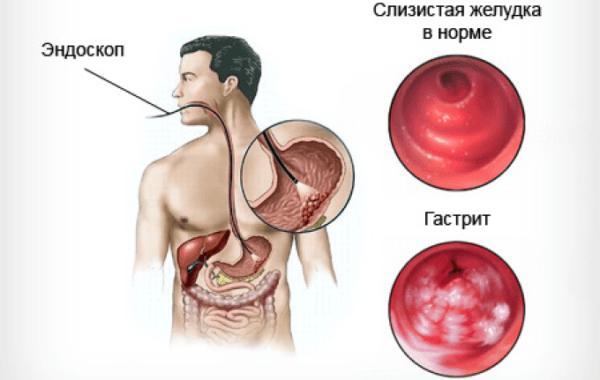 Основной причиной развития заболевания является патологическое воздействие желудочного сока на поверхность слизистой оболочки