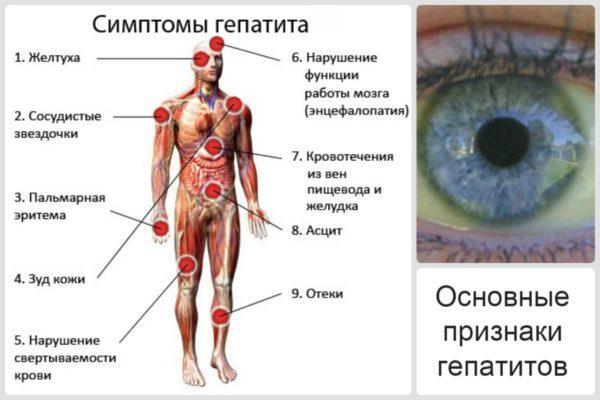 Основные симптомы гепатита