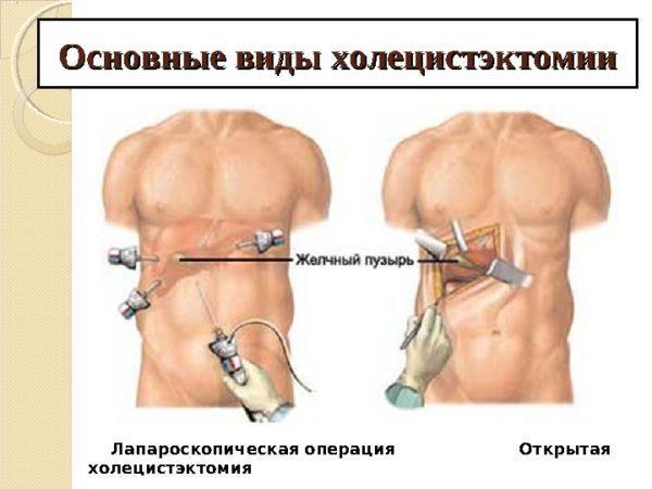 Основные виды удаления желчного пузыря