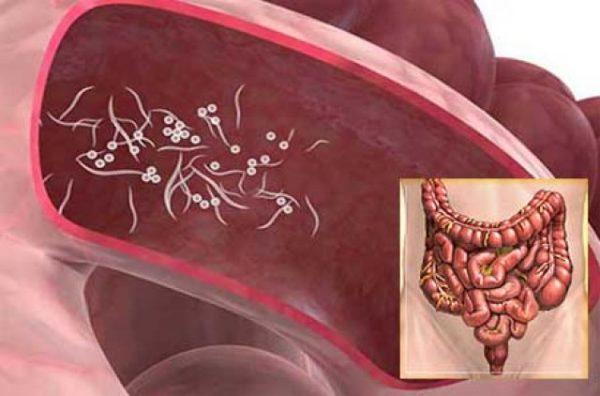 Большая часть остриц локализуется в толстом кишечнике