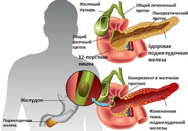 Отличия здоровой поджелудочной железы от железы, пораженной воспалительным процессом, возникающим по различным причинам